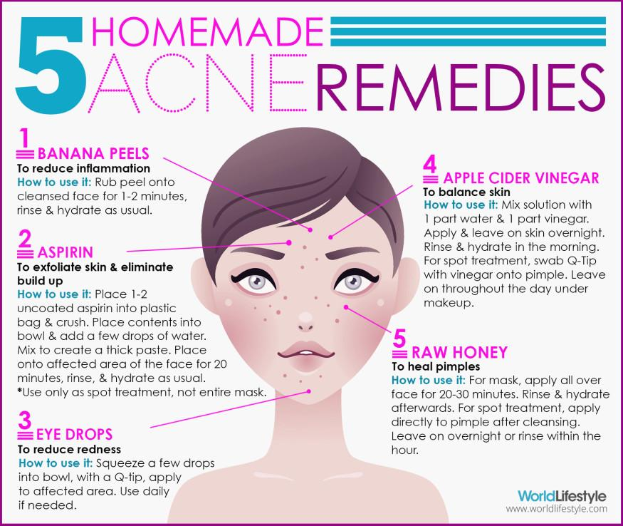 Getting rid of acne overnight with homemade remedies