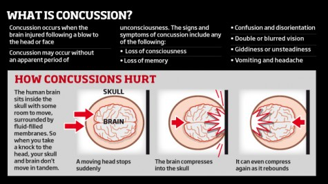 This chart shows the traumatic movements the brain experiences during an impact that causes a concussion.