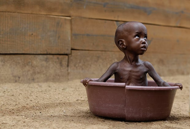 Somalian children face the daily threat of starvation.